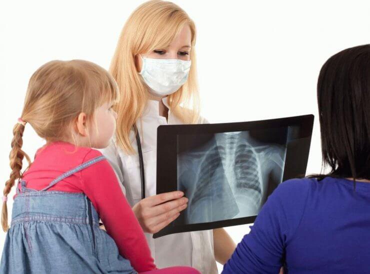 Для выявления туберкулеза легких у детей проводят флюорографию