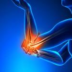 МРТ локтевого сустава: назначение, показания и противопоказания