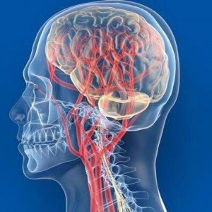 МРТ сосудов шеи и головы