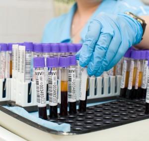 Подготовка к биохимическому анализу крови