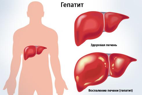Клиника гепатита С — острая и хроническая формы и их особенности