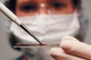 Общий анализ крови при раке кишечника