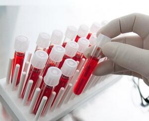 Значение ALT в крови