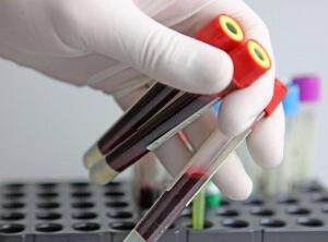 Что входит в клинический анализ крови