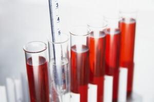 Тромбоциты, лейкоциты, гранулоциты