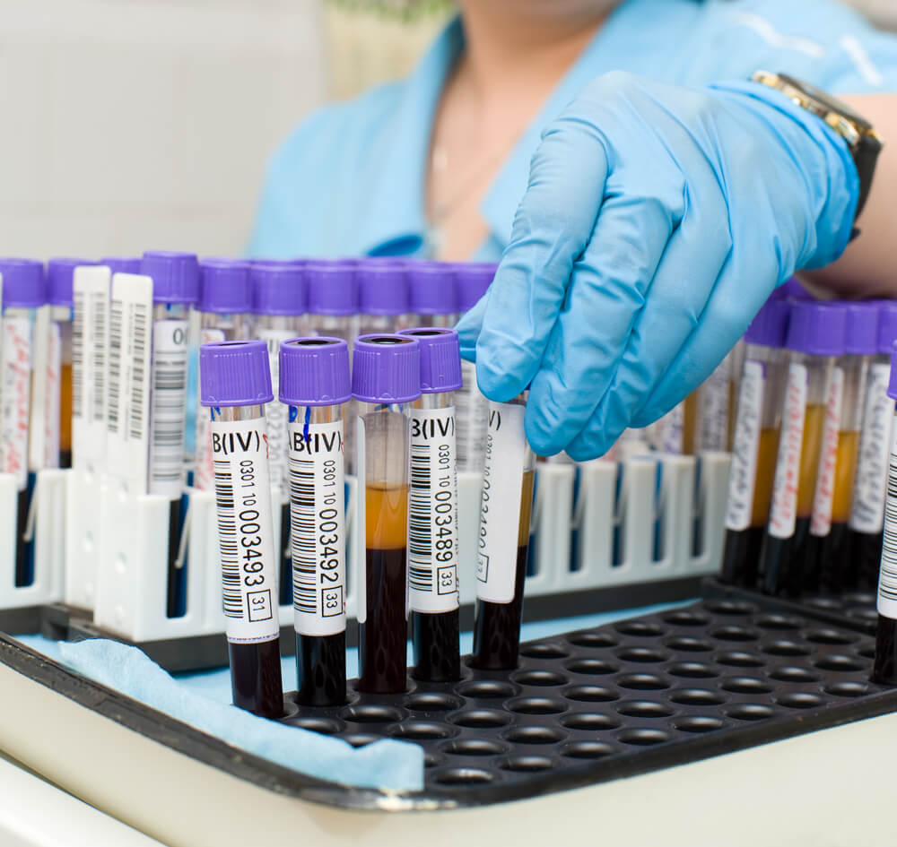 Биохимические анализы крови: расшифровка по таблице основных значений