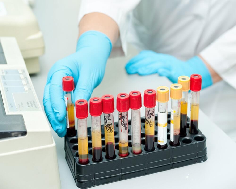 Что должен содержать нормальный анализ крови здорового человека?