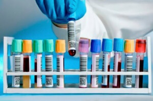 Важность сдачи крови на триглицериды