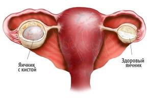 Причины изменения размеров яичников