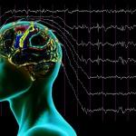 ЭЭГ при эпилепсии — особенности исследования и установка диагноза