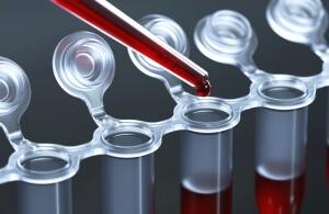 СОЭ в крови: значение и функции