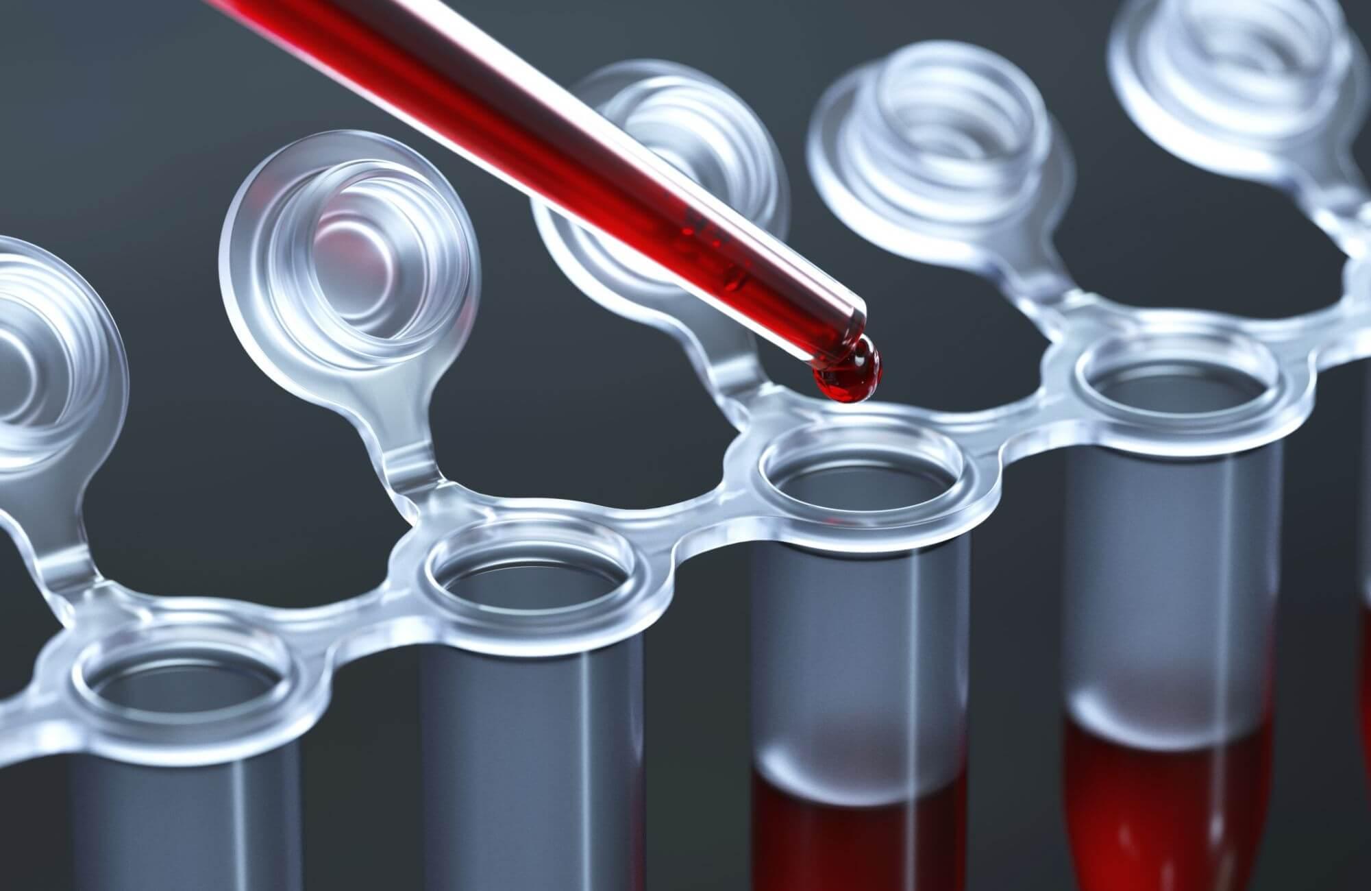СОЭ в крови повышена: причины повышения и нормализация показателя