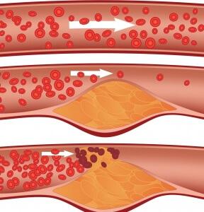Нормальные параметры холестерина ЛПНП