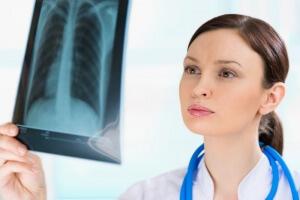 Заболевания, при которых назначают рентген