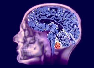 Методика исследования головного мозга