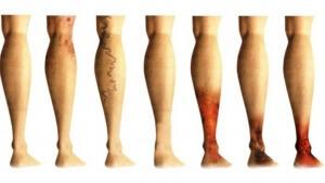 Причины и признаки возможных осложнений заболевания
