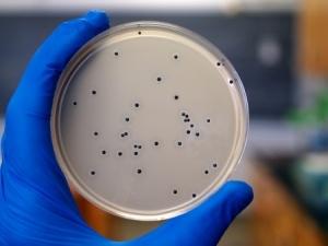 Посев на наличие бактерии в организме