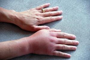 Возможные причины появления тромбов