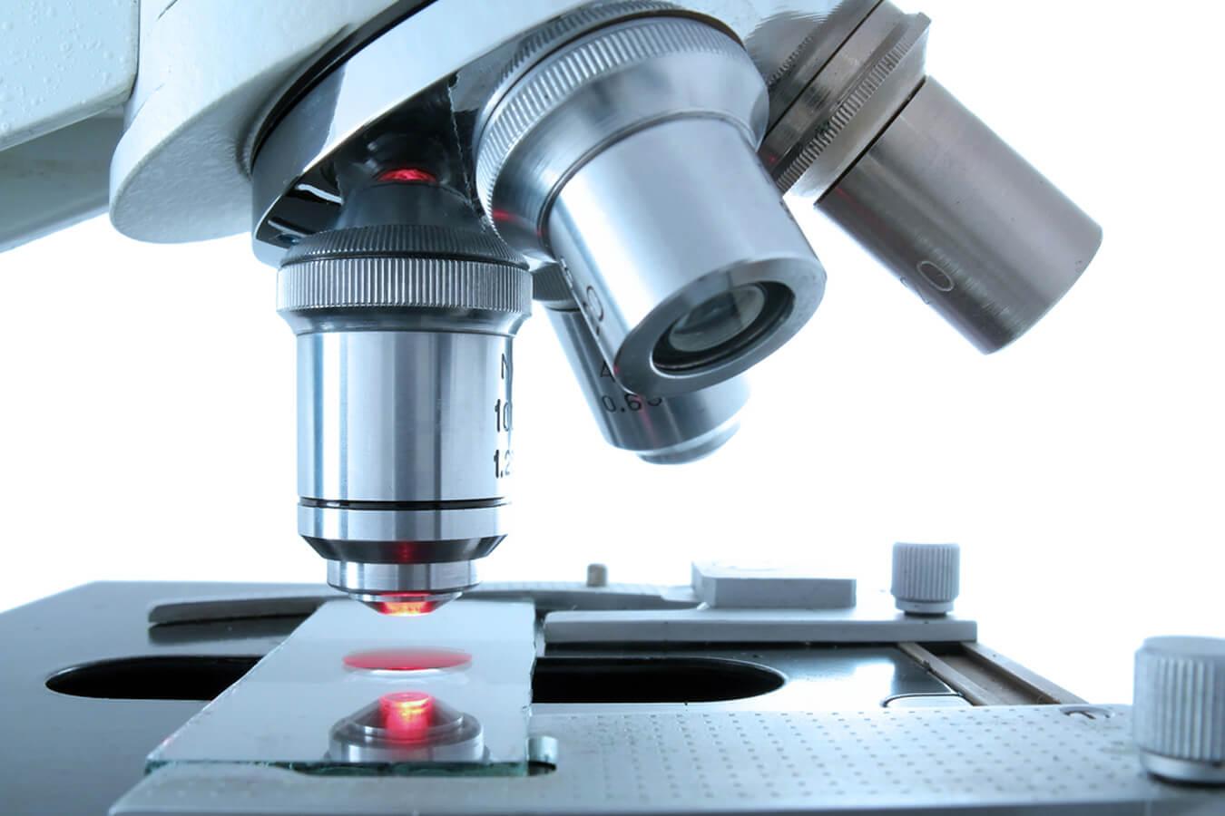 Анализ крови на онкомаркер СА-125 — диагностика рака яичников
