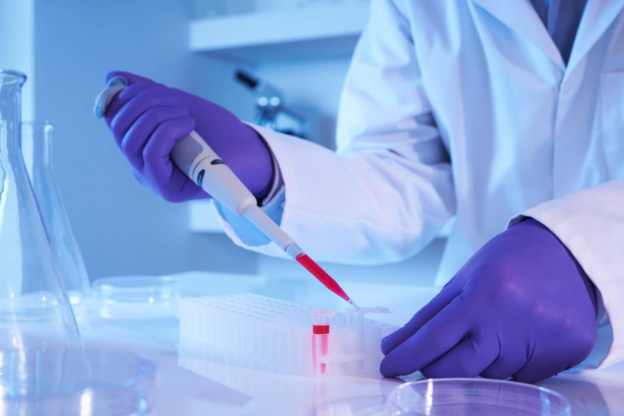 Онкомаркер СА 19-9: норма ракового антигена и возможные заболевания ЖКТ
