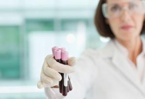 Общий анализ крови при раке