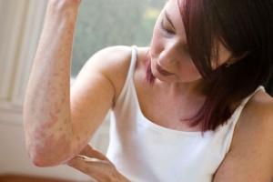 Симптомы при описторхозе зачастую напоминают обычную аллергическую реакцию
