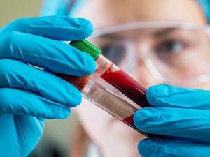 Эритроцитоз - повышенное содержание эритроцитов в крови