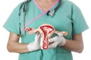 Точных причин возникновения рака яичников до сих пор нет, но есть предположения