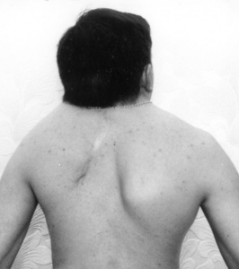 Укороченная и малоподвижная шея - признаки синдрома