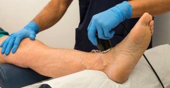 Благодаря УЗИ нижных конечностей можно выявить патологию артерий на ранних сроках и начать эффективное лечение