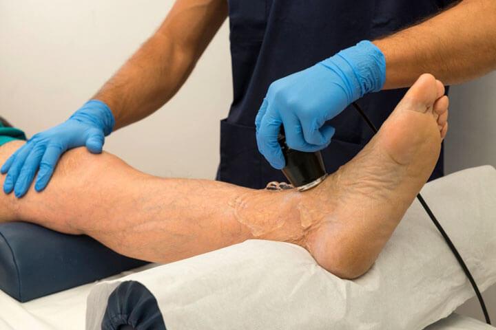 Процедура УЗИ артерий нижних конечностей и расшифровка результатов