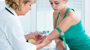 Исследование крови на свертываемость проводится утром натощак