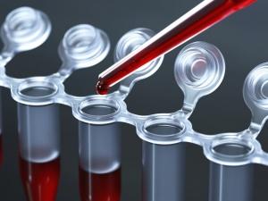 ЛДГ – это очень важный фермент, который участвует в процессе окисления глюкозы и образования молочной кислоты
