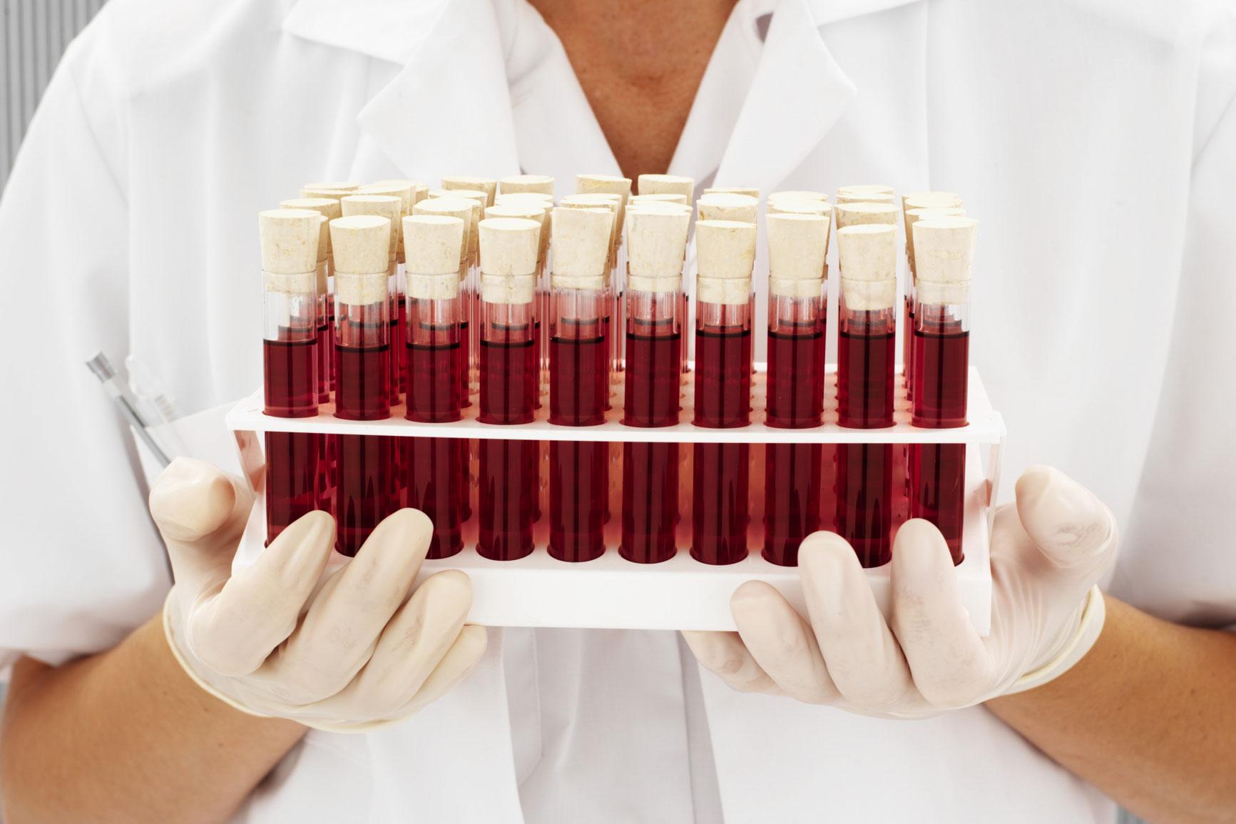 Причины повышения белка в крови и возможные заболевания