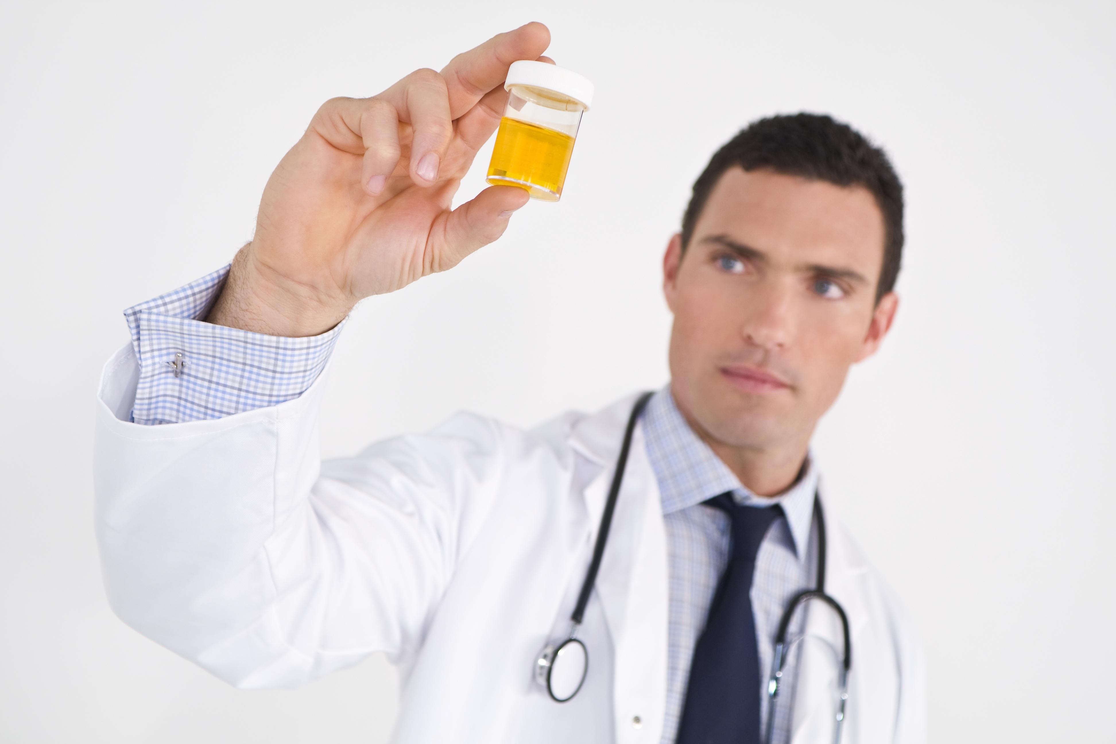 Клетки плоского эпителия в моче у мужчин и женщин: норма и причины отклонения