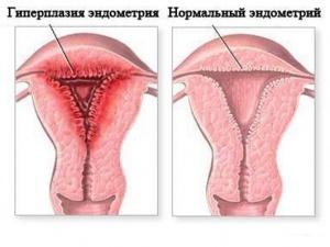 Гиперплазия эндометрия – это патологическое разрастание клеток эндометрия