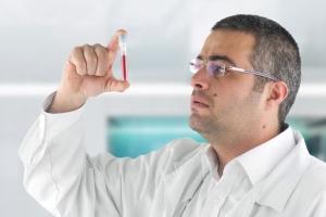 СОЭ – один из самых важных показателей анализа крови