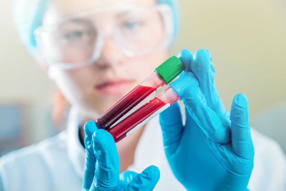 Тромбоциты в анализе крови понижены — тромбоцитопения: причины и лечение