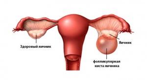 Существует много факторов, которые могут спровоцировать развитие фолликулярной кисты яичника