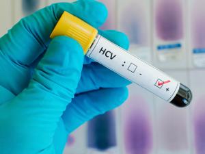 После проведения вирусной нагрузки врачи могут спрогнозировать активность вируса гепатита С в организме человека