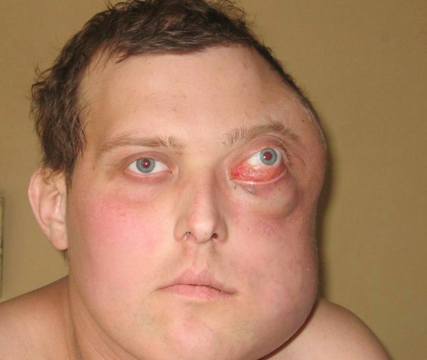 Опухоль Беркитта: признаки и методика лечения лимфомы
