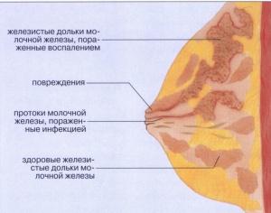 Неправильное лечение лактостаза может вызвать мастит, признаком которого является воспаление ткани молочной железы