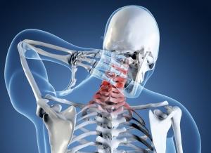Рентген шейного отдела позвоночника – это эффективная и безболезненная диагностика заболеваний и патологий