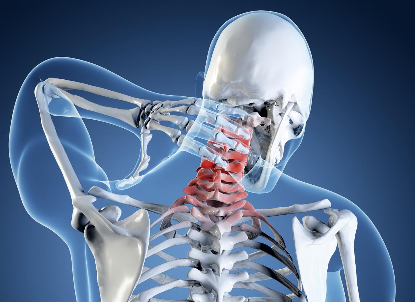 Назначение рентгенографии шейного отдела позвоночника и процедура обследования
