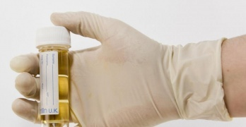 Наличие бактерий в моче – это признак воспалительных заболеваний почек и мочевыводящих путей