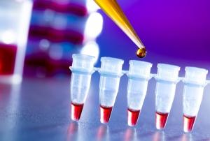 ОАК – самый распространенный и эффективный метод диагностики, который позволяет оценить состояние здоровья человека