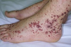 Тромбоцитопения – это патологическое снижение уровня тромбоцитов в крови, которое сопровождается повышенной кровоточивостью