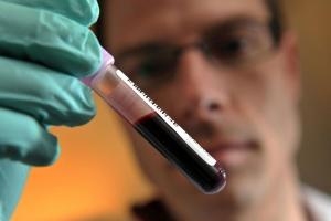 Билирубин – это пигмент, который является продуктом распада эритроцитов