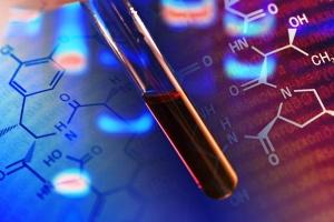 Мочевая кислота – вещество, которое образуется как продукт обмена, когда пищеварительная система расщепляет пурины