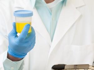 Анализ мочи по Нечипоренко – это лабораторное исследование, которое позволяет оценить состояние почек и мочевыводящих путей